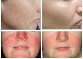 intense pulsed light therapy ipl photofacial laser treatment cost photo laser