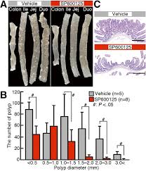 jnk signaling promotes intestinal tumorigenesis through activation