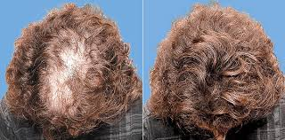 hairstyles for hiding a bald spot cover bald patches spots thicken hair disguise hair loss