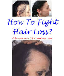 download hair loss ebook 483 best hair loss in women images on pinterest