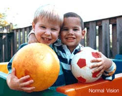 Does Macular Degeneration Always Lead To Blindness Macular Degeneration Blindness Org