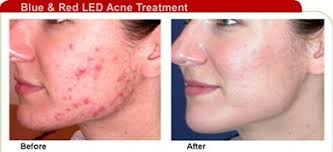 at home light therapy for acne best blue light for acne at home f41 on stylish image collection