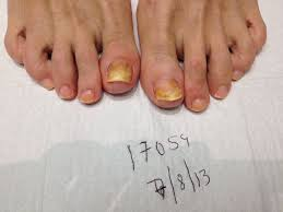 toenail fungus before and after photos podiatrist in huntington