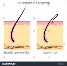 of ingrown hairs photo hkmtta org