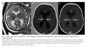 magnetic resonance imaging of the fetal brain hkmj