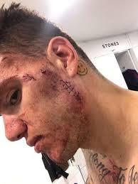 Challenge Nose City Keeper Ederson Reveals Extent Of Shocking Sadio