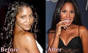 tamar braxton nose job before after toni braxton plastic surgery successful breas