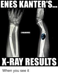 Xray Meme - enes kanter s x ray results when you see it enes kanter meme on me me