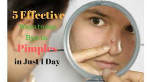 Face Mapping Acne 5 Effective Natural Ways To Get Rid Of Pimples In Just 1 Day