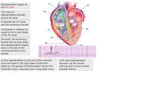 Mcgraw Hill Anatomy And Physiology Saladin 6th Edition Ecg Electocardiogram 12 Leads Ecg Med Club