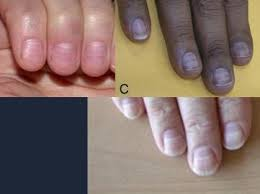 nail disorders at university of minnesota medical studyblue