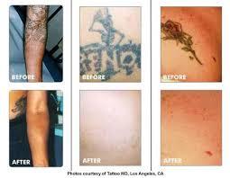 laser tattoo removal dayton ohio 1000 geometric tattoos ideas