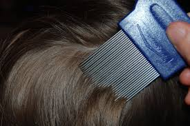 when head lice strike combating the common childhood nuisance