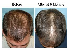 low level light therapy hair laser cap results before after pics of low level laser hair therapy