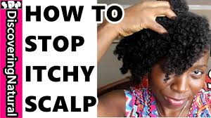 Shampoo For Itchy Scalp And Color Treated Hair What Causes Itchy Scalp And How To Stop Itchy Scalp Youtube