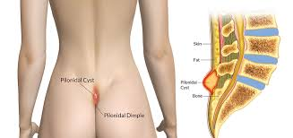 pilonidal cyst location pilonidal cyst surgery home treatment pictures removal remedies