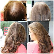 hair weaves for thinning hair hair definitions hair salon highgate north london kerastraight