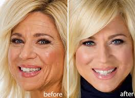 how ols is theresa csputo clear up lines blemishes and any imperfections from your face