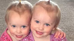 Twlin Sis Twin Power 17 Stories About The Amazing Bond Between Twins