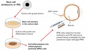 Path Of Light Through The Eye The Eye And Stem Cells The Path To Treating Blindness Eurostemcell