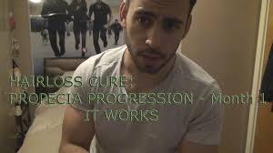 propecia finasteride progression quick update it works youtube