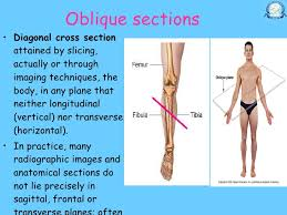 Human Anatomy Planes Of The Body 11 20 Dr Nand Lal Terminologies Anatomical Positions Anatomical Pl U2026