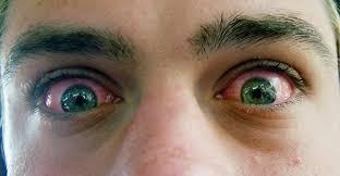 why does marijuana your green daily