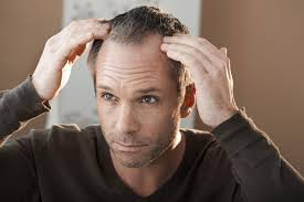 percentae of men with thinning hair at 60 what you need to know about hair loss in men and women