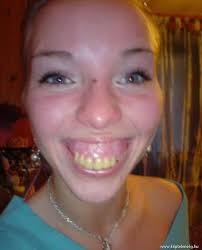 Yellow Teeth Meme - 75 most funniest smile pictures