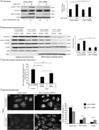 stress induced hyperacetylation of microtubule enhances
