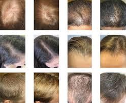 Laser Hair Growth Hat Buy Laser Cap From High Density Hair Transplants
