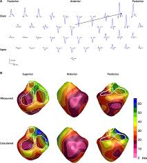 experimental validation of noninvasive epicardial and endocardial