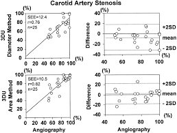 three dimensional ultrasound study of carotid arteries before and