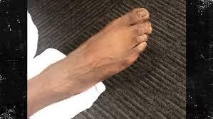 Nails Knocked Out Barely Breathing Inside Mlb Star - nba s reggie jackson reveals jacked up feet tmz com