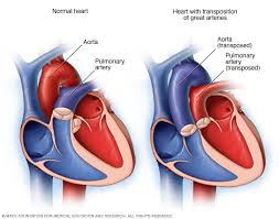 Anatomy Of The Heart Lab Transposition Of The Great Arteries Symptoms And Causes Mayo