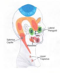 head neck and shoulder trigger point chart 1 copyright