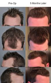 Antidepressants And Hair Loss My Hair Transplant After 5 Months Tressless
