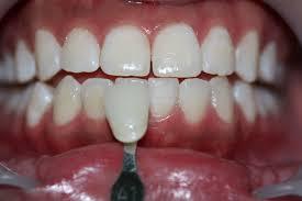 dentist in kuala lumpur petaling jaya malaysia britesmile