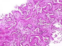 lepidic pattern meaning pathology outlines adenocarcinoma classification