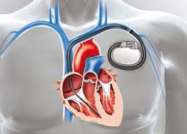 pacemaker chambre pose d un pacemaker ramsay générale de santé nos offres