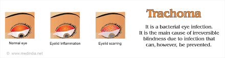 Symtoms Of Blindness Trachoma Causes Symptoms Complications Diagnosis Treatment