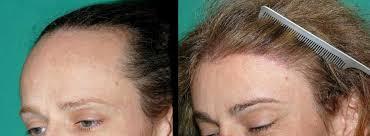 feminizeing hair transgender hair restoration surgery chicago hair institute