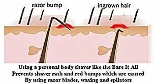 electric shaver ingrown hair avoid shaver rash lumps bumps and ingrown hairs ebay