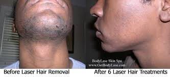 10 laser tattoo removal raleigh nc 301 moved permanently