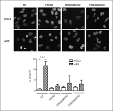 Flag Measurements The Atpase Activity Of Reptin Is Required For Its Effects On Tumor