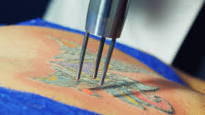 laser tattoo removal patient guide how tattoo removal works