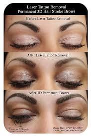 laser tattoo removal permanent makeup eyebrow mugeek vidalondon