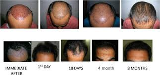 hair transplant month by month pictures good bye hair loss hair loss tips advice online transplanted