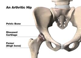 hip joint replacement south coast orthopaedic associates p c