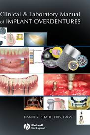 buy clinical and laboratory manual of implant overdentures book